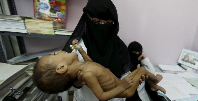 گرسنگی و مرگ در کمین هزاران یمنی است