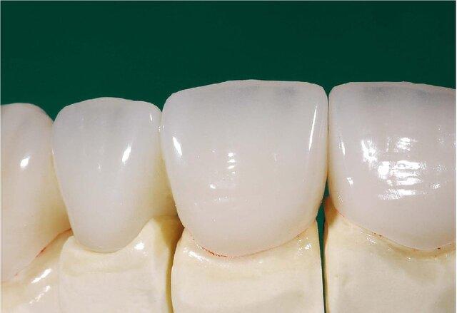 ساخت دندانهای سرامیکی در کشور فراهم شد