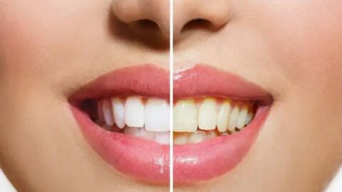 ترفندهایی جالب برای محافظت از دندانها در برابر زردی