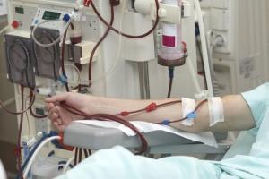 تولید پلیمرهایی برای کمک به بیماران نیازمند دیالیز