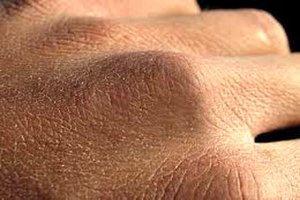 استفاده از کرمهای آبرسان قوی برای جلوگیری از خشکی پوست
