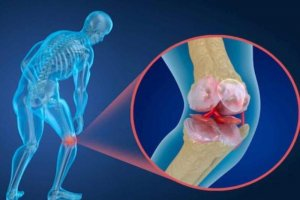 دلایل به وجود آمدن «پوکی استخوان» از منظر طب سنتی